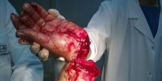 قطع يد1